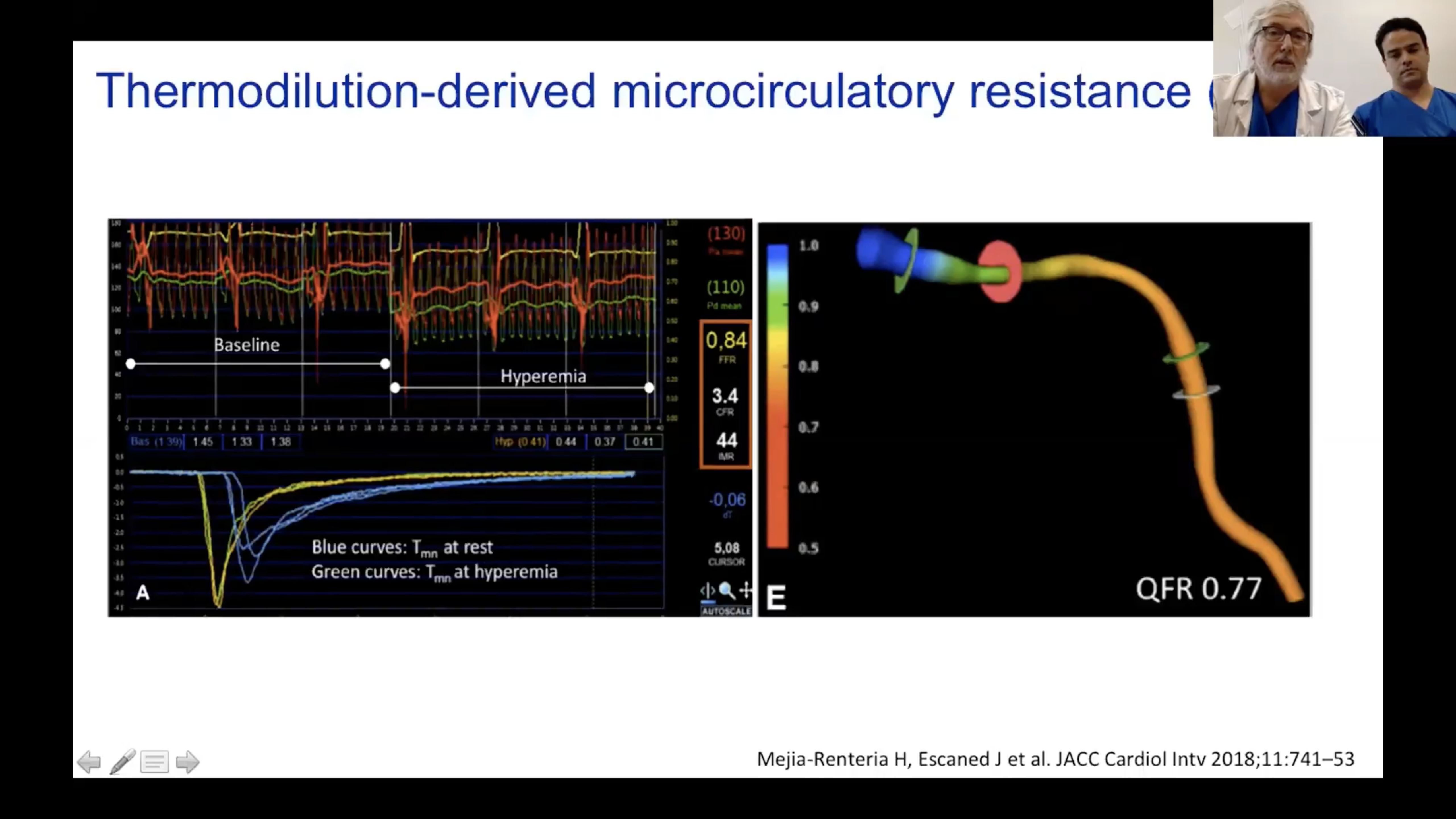 Thermodilution-derived microcirculatory resistance