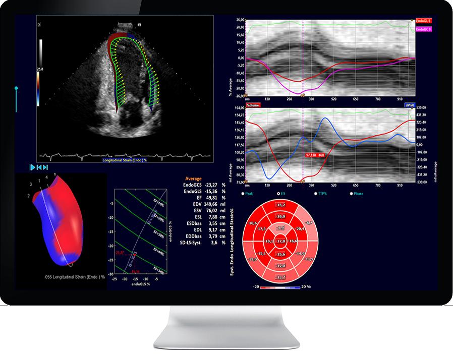 Ultrasound screen 2