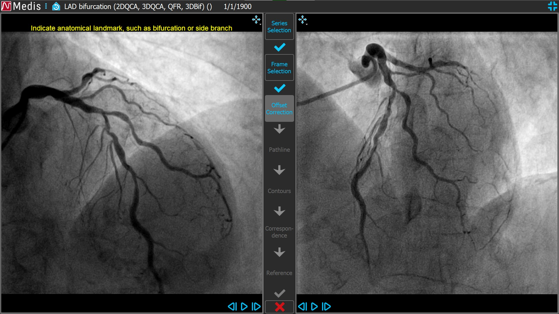 Medis Suite XA 3D QCA Bifurcation1 3 Offset Correction