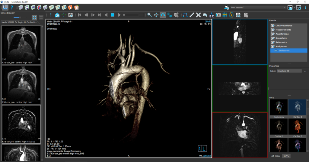 Medis Suite MR 3D Viewer Module 3 (current1becomes4)