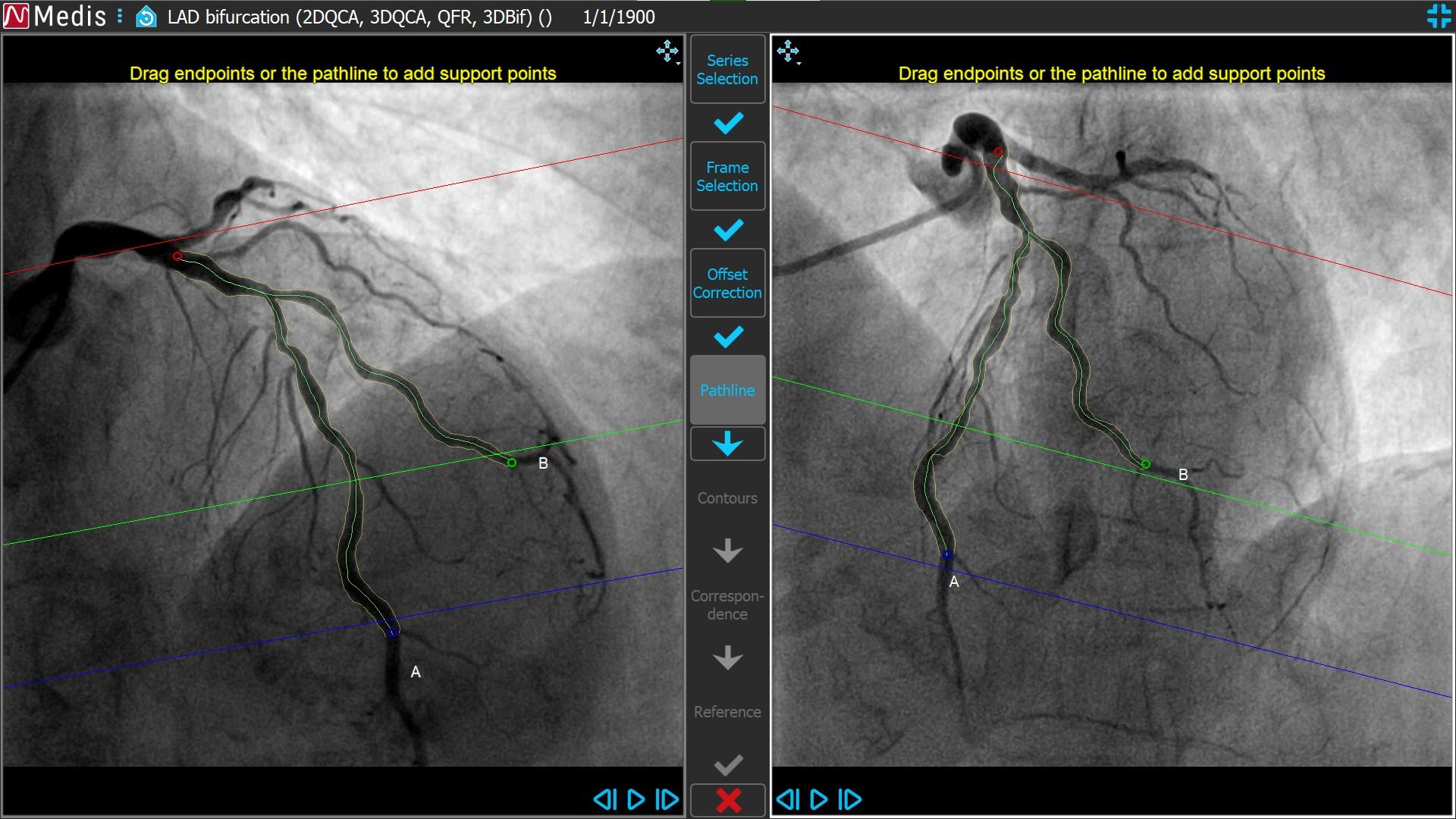 Medis Suite XA 3D QCA Bifurcation4 4 Pathline