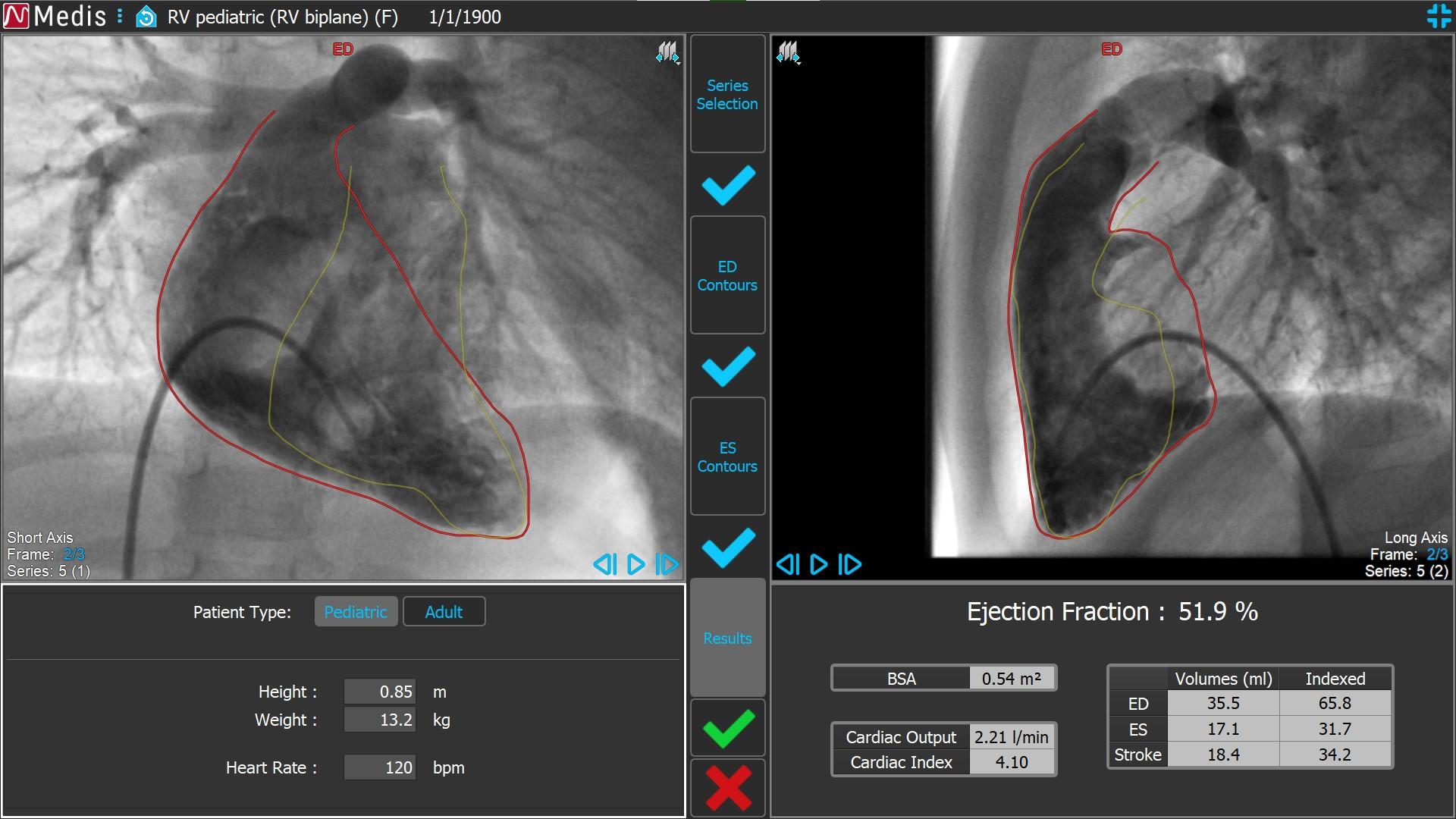 Medis Suite XA RV Biplane 4 Results