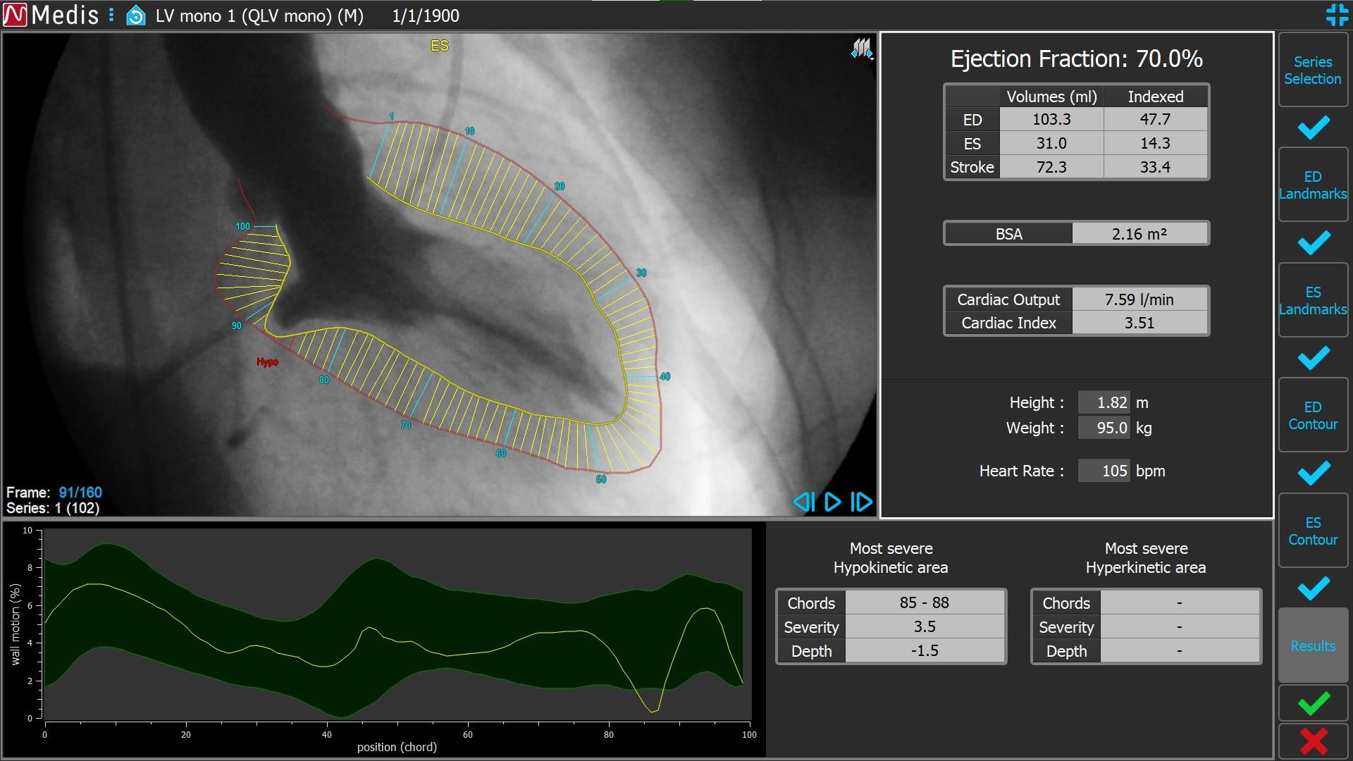 Medis Suite XA LV Monoplane 6 Results
