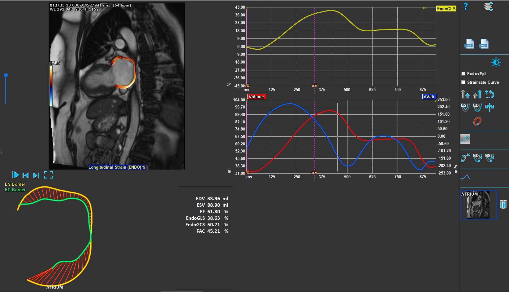 Medis Suite MR – Atrial Strain Module 1