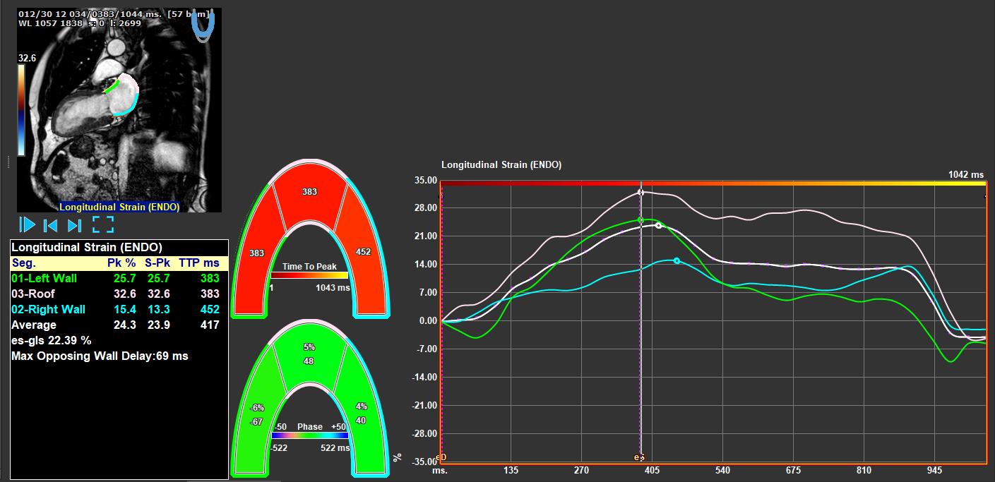 Medis Suite MR RV Strain Module 2 Features