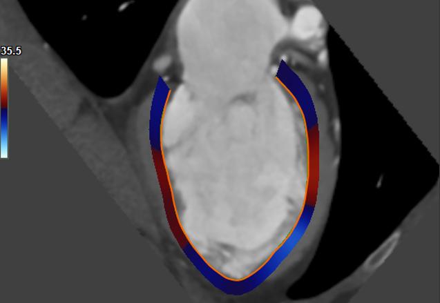 Medis Suite CT – LV strain
