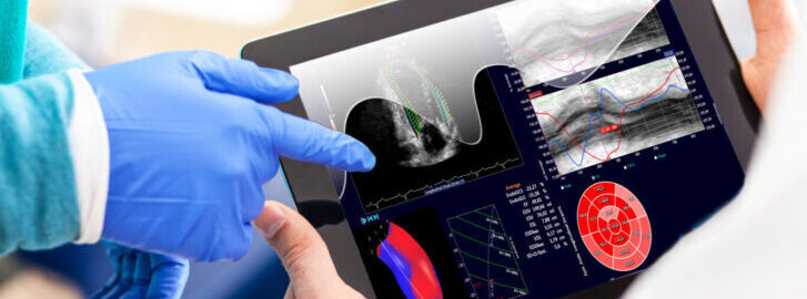 Acquisition: Medis adds Ultrasound to its portfolio