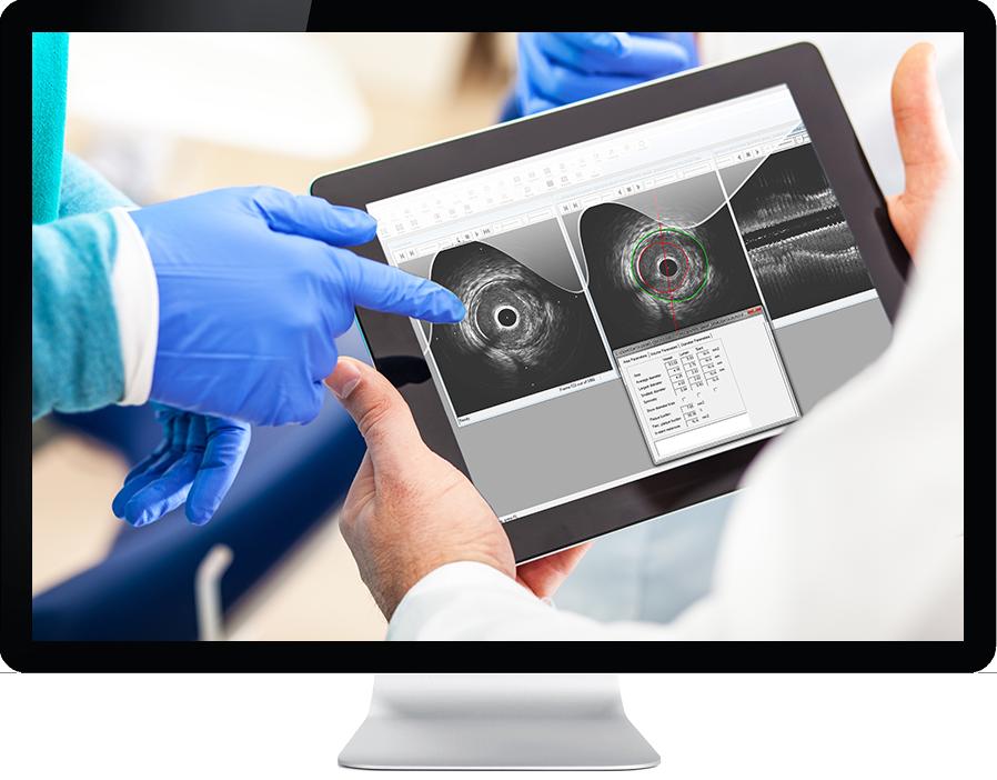 Medis Suite Intravsacular image on tablet on monitor