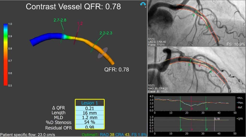 Answer to Case 1QFR Visual Interpretation Challenge EuroPCR2021